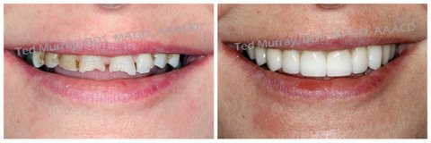 porcelain veneers, cosmetic dentistry, Dubuque Dentist