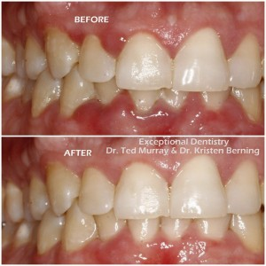 Treating Gingivitis With Laser Dentistry
