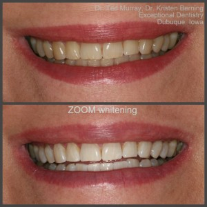 Dubuque dentist Teeth Whitening