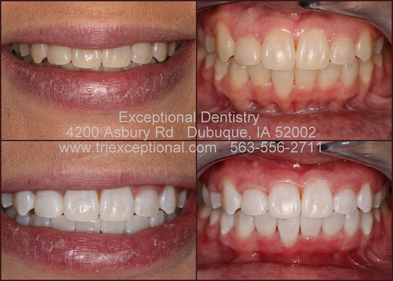 Dubuque Teeth whitening bleaching Cosmetic Dentist ZOOM