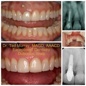 Dubuque Dental Implants  Exceptional Dentistry Dubuque Dentist