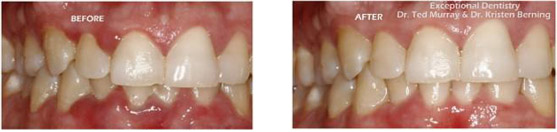 Laser Gum Treatment - Before & After | Exceptional Dentistry
