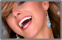 Full Mouth Reconstruction | Exceptional Dentistry | Dubuque, Iowa