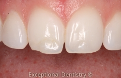 Cosmetic Bonding Chipped Tooth Dubuque Cosmetic Dentist