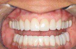 Dubuque Dentist full mouth reconstruction