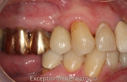 Dr. Alexia Oetken Implant Crown