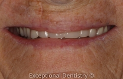 Cosmetic Dentures Dr. Kristen Berning Dubuque Dentist