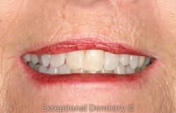 Dr Ted Murray Invisalign