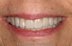 Smile Makeover Dr. Ted Murray Dubuque Cosmetic Dentist