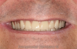 Dr Kristen Berning dentures after