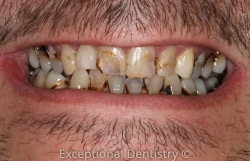 Dubuque dentist dentures rampant tooth decay Mt Dew Mouth