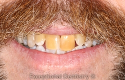Dr. Ted Murray before and after crowns