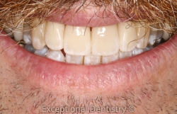 porcelain crowns smile makeover Dubuque cosmetic dentist