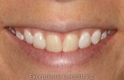Cosmetic Bonding Whiter teeth Dubuque Cosmetic Dentist Kristen Berning