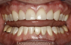 Dubuque dentist white crowns