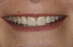 Iowa cosmetic dentist veneers