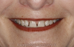 Iowa dentist veneers