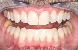 Tooth whitening ZOOM Dubuque Dentist