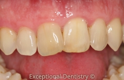 Dubuqe dentist internal whiten