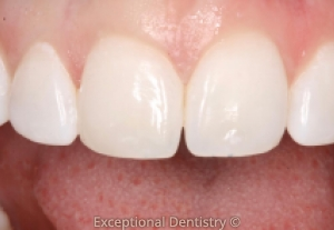 Cosmetic Bonding White Teeth Dubuque Cosmetic Dentist