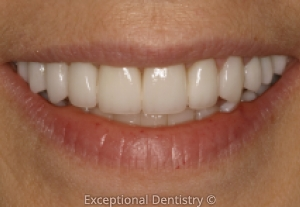 Dubuque dentist veneers