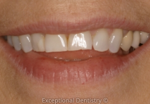 Dubuque porcelain veneers