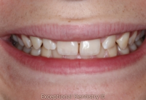 Cosmetic bonding broken tooth