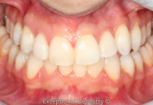 Dubuque invisalign before and after