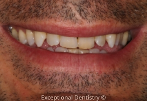 Tooth Whitening Before And After Photo Gallery Dubuque