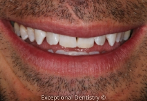 Dyersville Galena Dentist Cosmetic Teeth Whitening