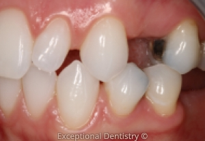 Dubuque dental implant