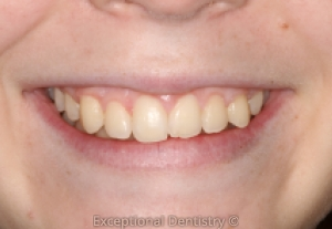 Zoom whitening Dubuque
