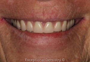 Exceptional Dentistry cosmetic dentures implants