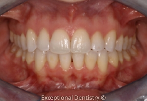 Dubuque clear braces Exceptional Dentistry